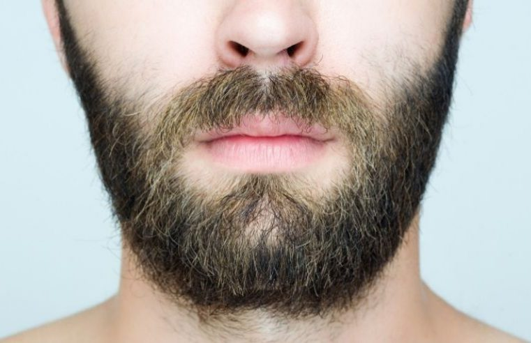 Beard & Moustache Transplantation