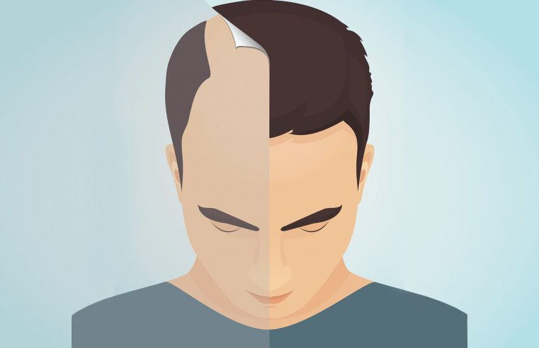 Must Be Read Before Hair Transplantation