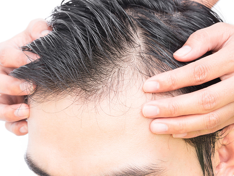 Hair Transplantation Techniques